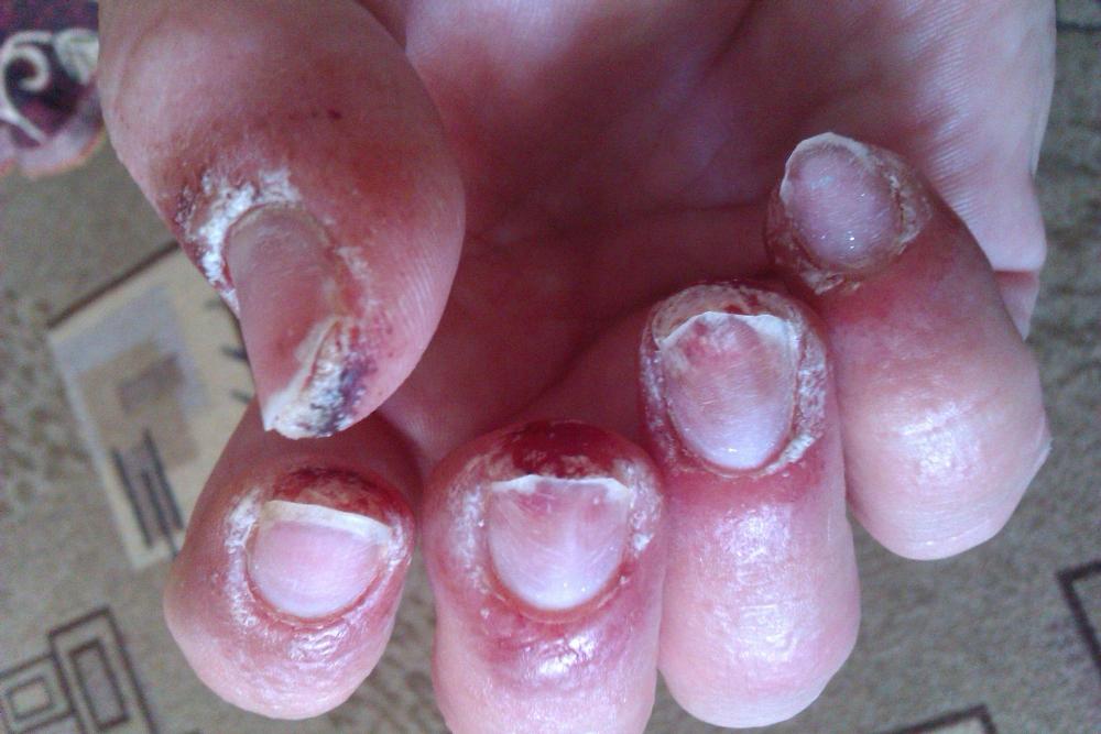 Неудачное наращивание ногтей фото до и после